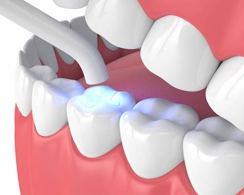Tooth colored dental fillings in springfield mo