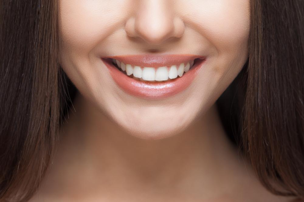 a close up of a woman's smile | teeth whitening springfield mo