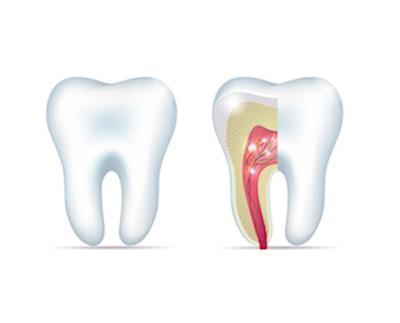 root canal treatment | springfield mo