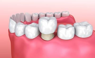 tooth replacement | springfield mo