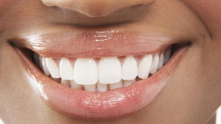 Woman with teeth whitening in Aurora IL