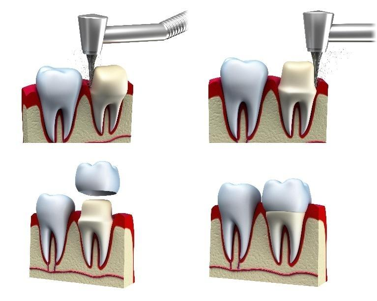 a diagram of dental crowns | dental crowns southeast springfield mo