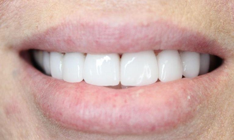 fixed front teeth veneers | springfield mo