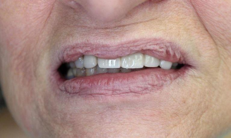 Implant Bridge in Springfield MO
