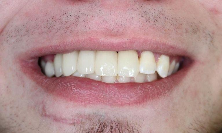 missing front teeth filled with implants springfield mo