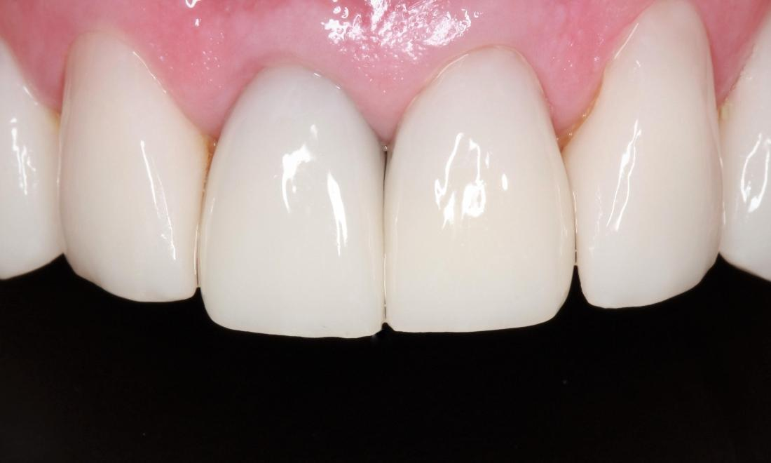 patient with new veneers in springfield mo
