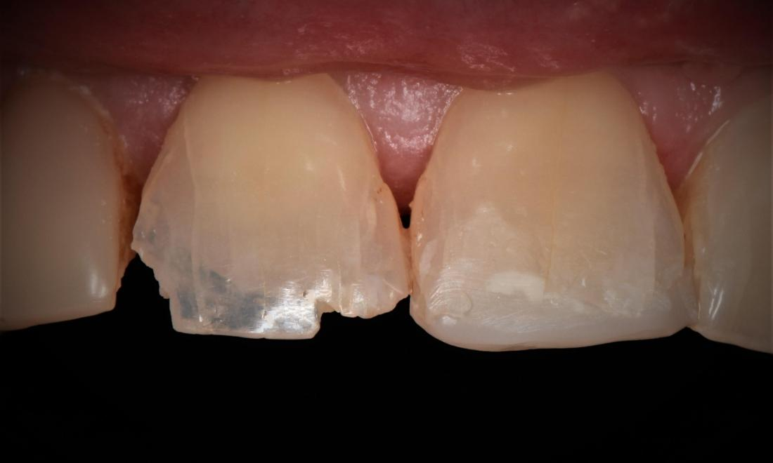 Tooth Before Bonding Photo Springfield MO