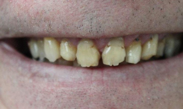 Close up of patients smile with chipped and damaged teeth at 40504 dentist office