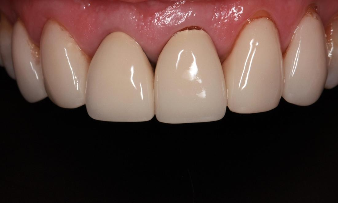Patient with old veneers in springfield mo