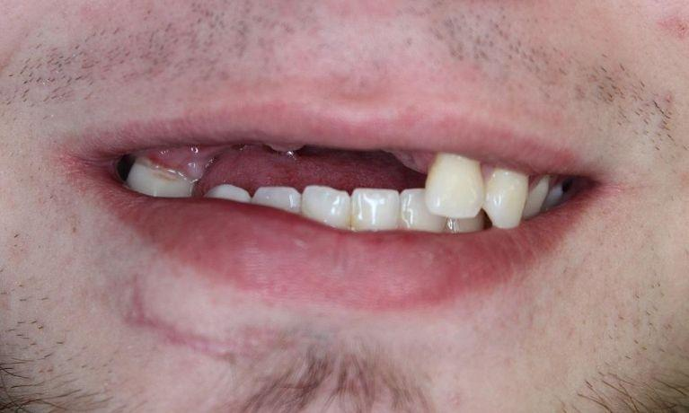 Multiple-Implant-Case-Due-To-Trauma-Before-Image